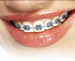 Braces with metal clip