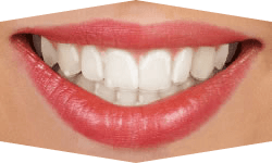 Teeth clip removable. Types of braces grants