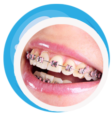 Teeth clip removable. Different types of braces