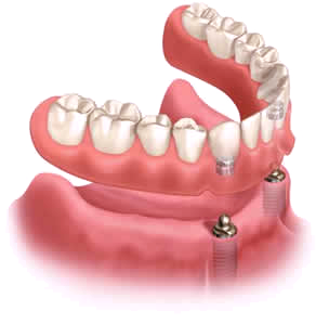 Teeth clip temporary. Implant supported dentures in