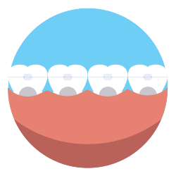 Teeth clip wire. Braces snyder orthodontics in