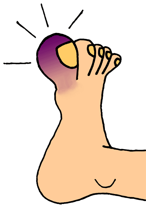 Toe drawing animated. Collection of free inflammatory
