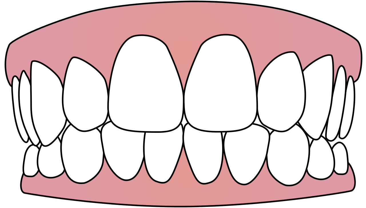 Tooth vector png. Icons free and backgrounds