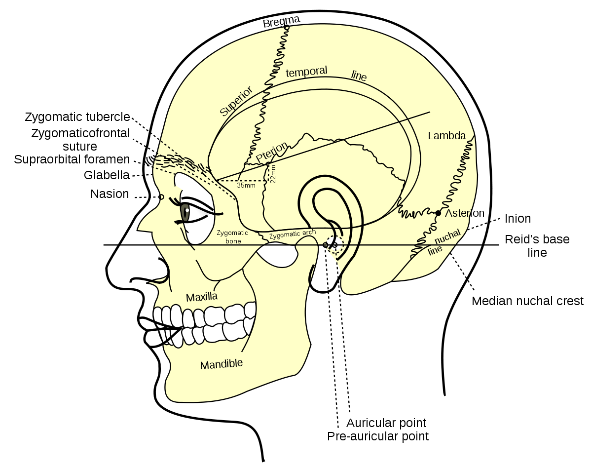 Drawing surfaces dura lar. Mastoid part of the