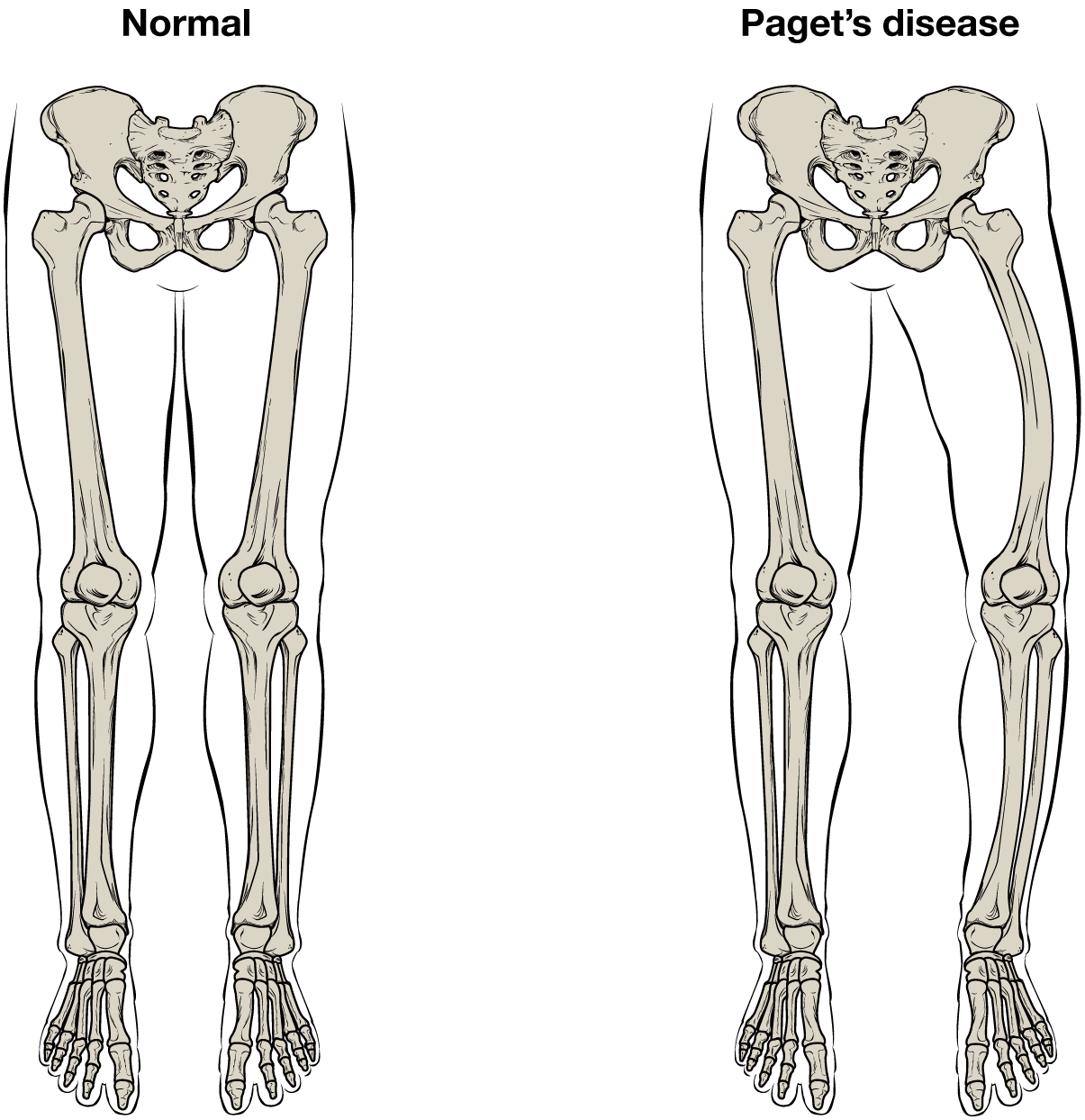 Transparent bones leg. Normal are relatively straight