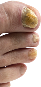 Transparent fingernails curved. The ultimate guide to