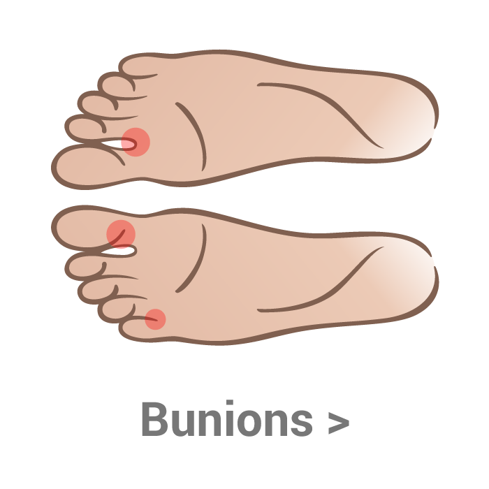 Transparent foot bump side. Bunions kassis brothers shoes