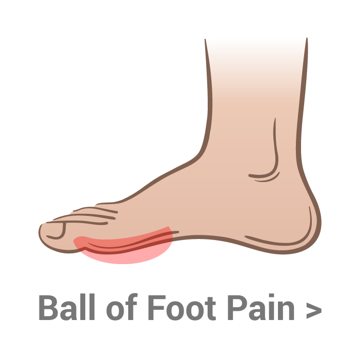 Transparent foot painful. Ball of pain kassis