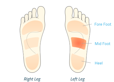 Transparent foot painful. Understanding pain upstep comfo