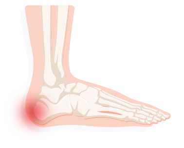 Transparent foot painful. Identifying your pain treadmillreviews