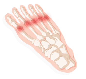 Transparent foot soles. Identifying your pain treadmillreviews