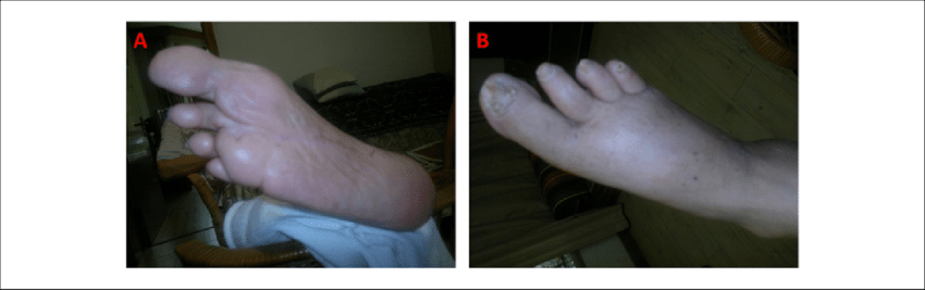 Transparent foot right. A b the condition