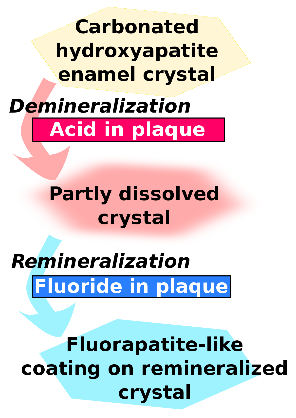 Transparent mineral fluoride. Remineralisation of teeth wikipedia