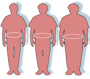 Transparent personality obese. Obesity wikipedia