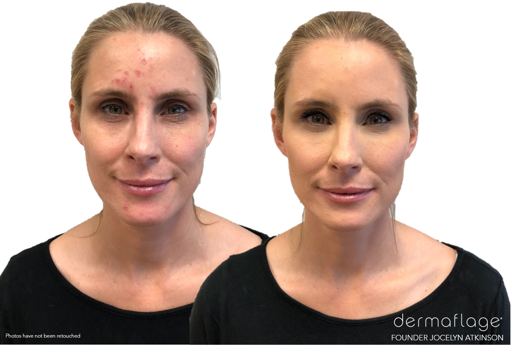 Transparent scars fake. Scar makeup to cover
