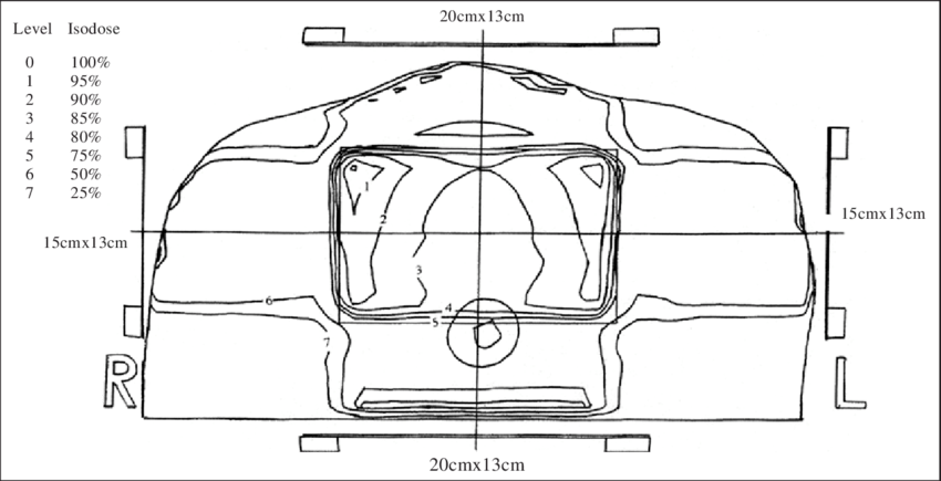 Transport drawing outline. B isodose distribution for