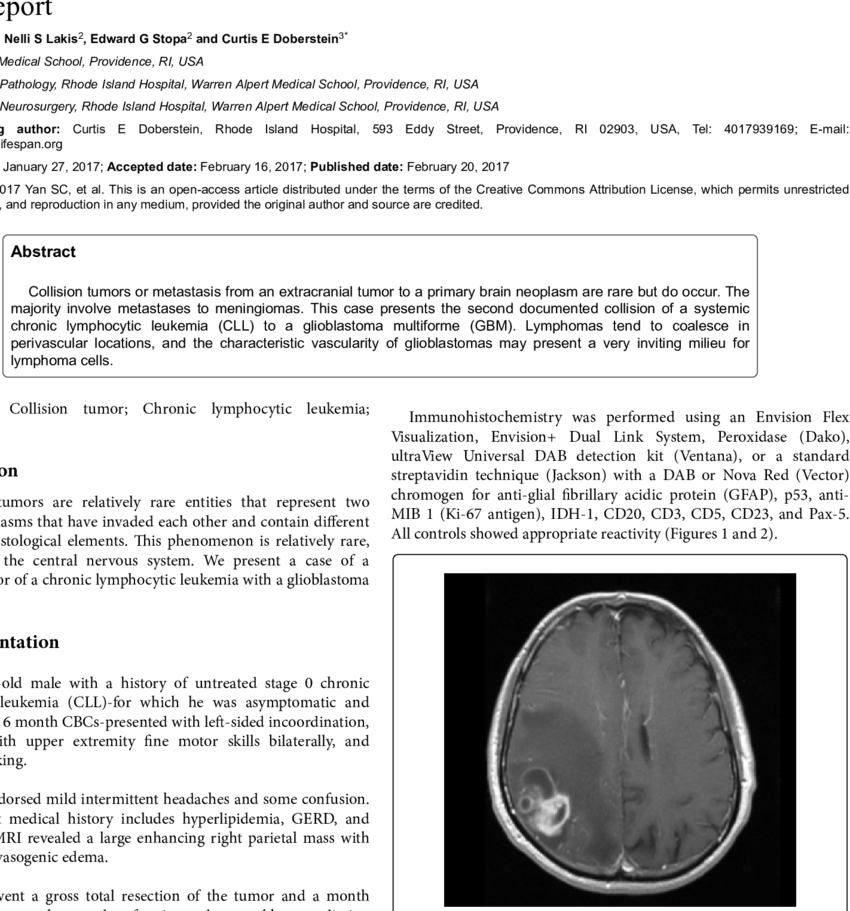 Vector contact cll. T weighted axial image