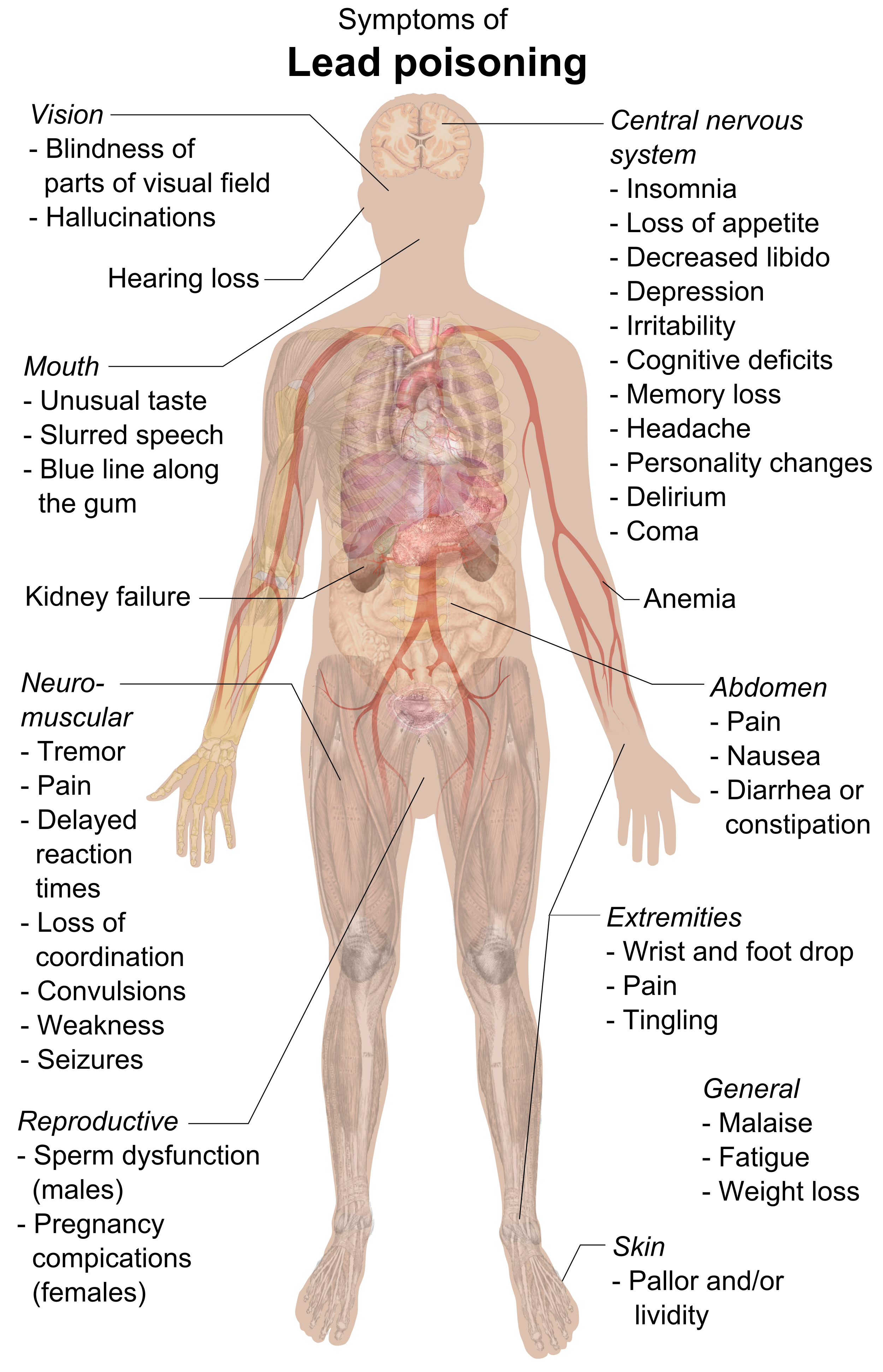 Vector types body. File symptoms of lead