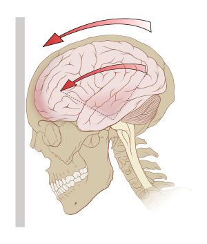 Concussion wikipedia acceleration gforces. Drawing injuries traumatic brain png library library