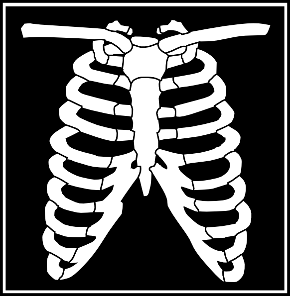 Black white clip art. Xray clipart free library